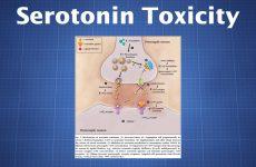 serotonin toxicity
